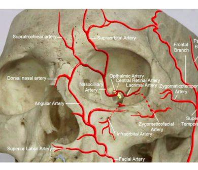 AFI Complications & Vascular Emergencies