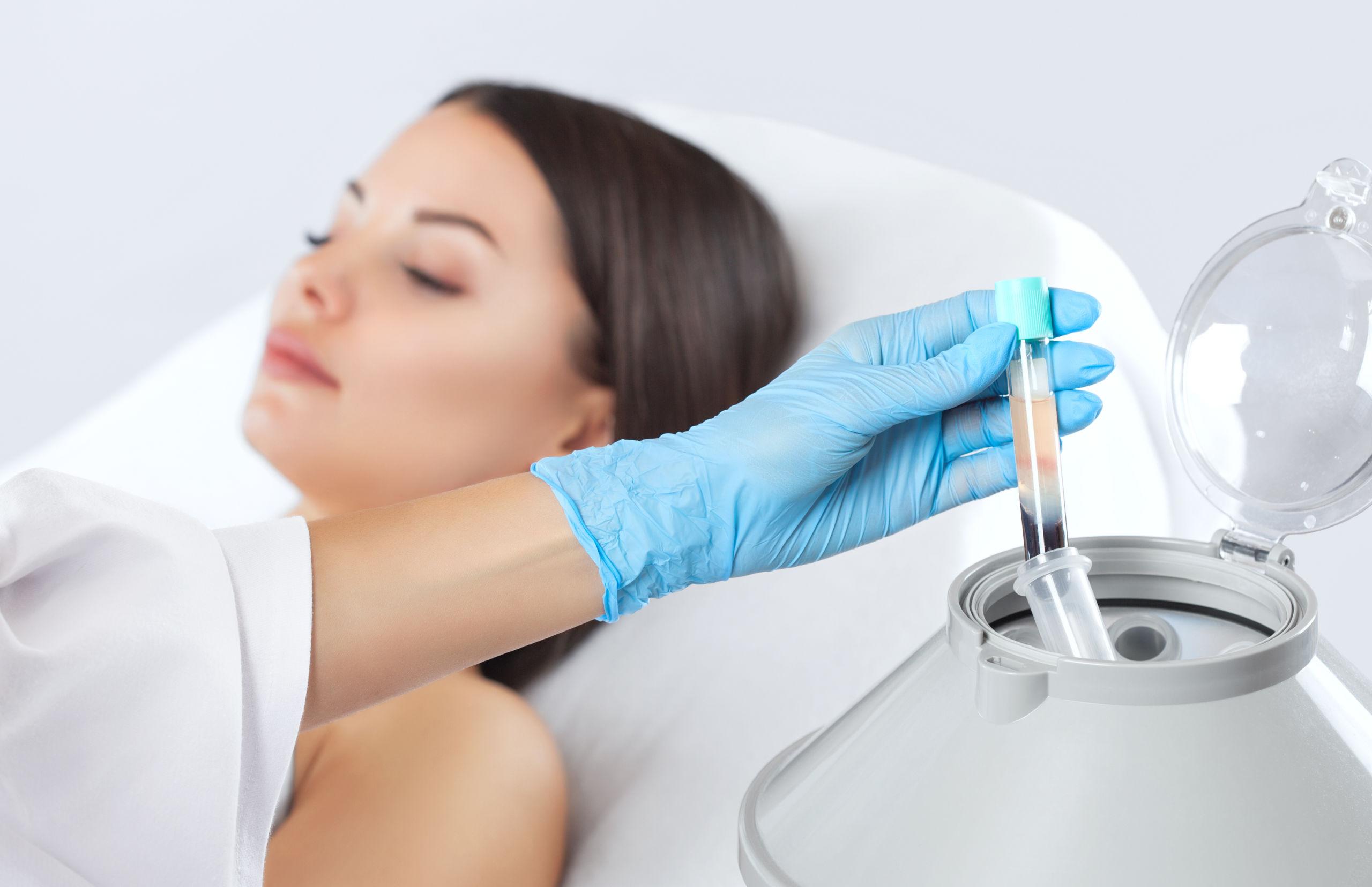 SKN – 4.1 Platelet-Rich Plasma (PRP) Therapy