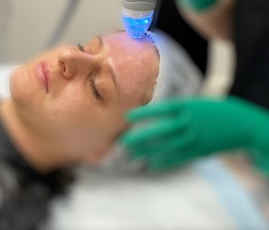 Fractional Radiofrequency
