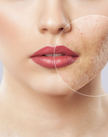 Skin Peels and Microneedling Workshop Thursday 25th February 2021