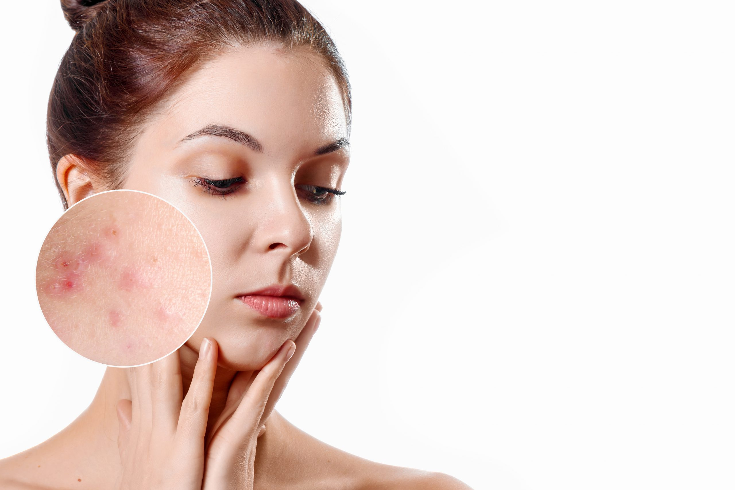 SKN – 1.3 Cosmetic Dermatology