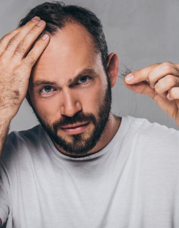 SKN – 4.4 Hair Regrowth