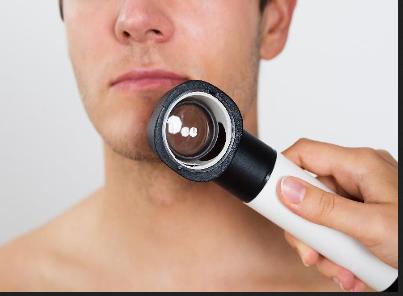 cosmetic mole removal thumbnail